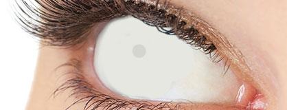 Augen mit eingesetzten Zombie Kontaktlinsen